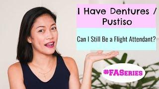 Can I still be a Flight Attendant if I have Dentures? By Misskaykrizz